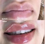 اصاح فرم بینی بدون جراحی